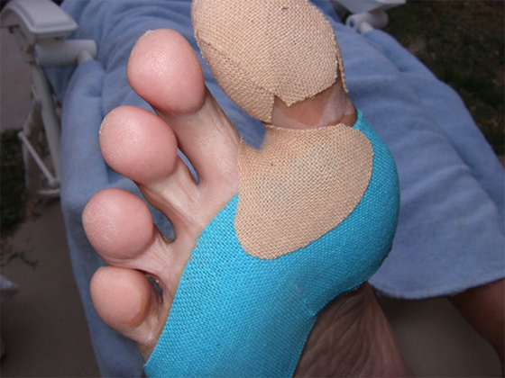 Hotspots And Blisters Foot Care Tips For The Trail