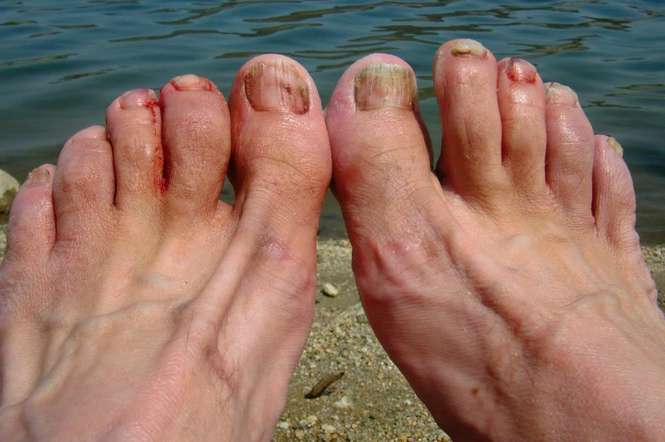 Hotspots And Blisters: Foot Care Tips For The Trail